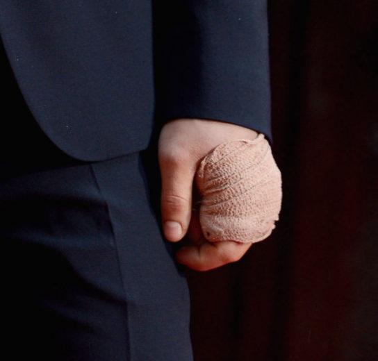 Zac Efron aparece de mão enfaixada