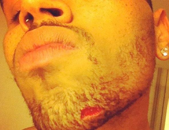 Chris Brown e Drake podem pagar 16 milhões de dólares por briga