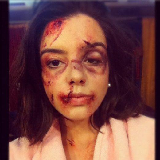 Giovanna Lancellotti aparece cheia de hematomas!