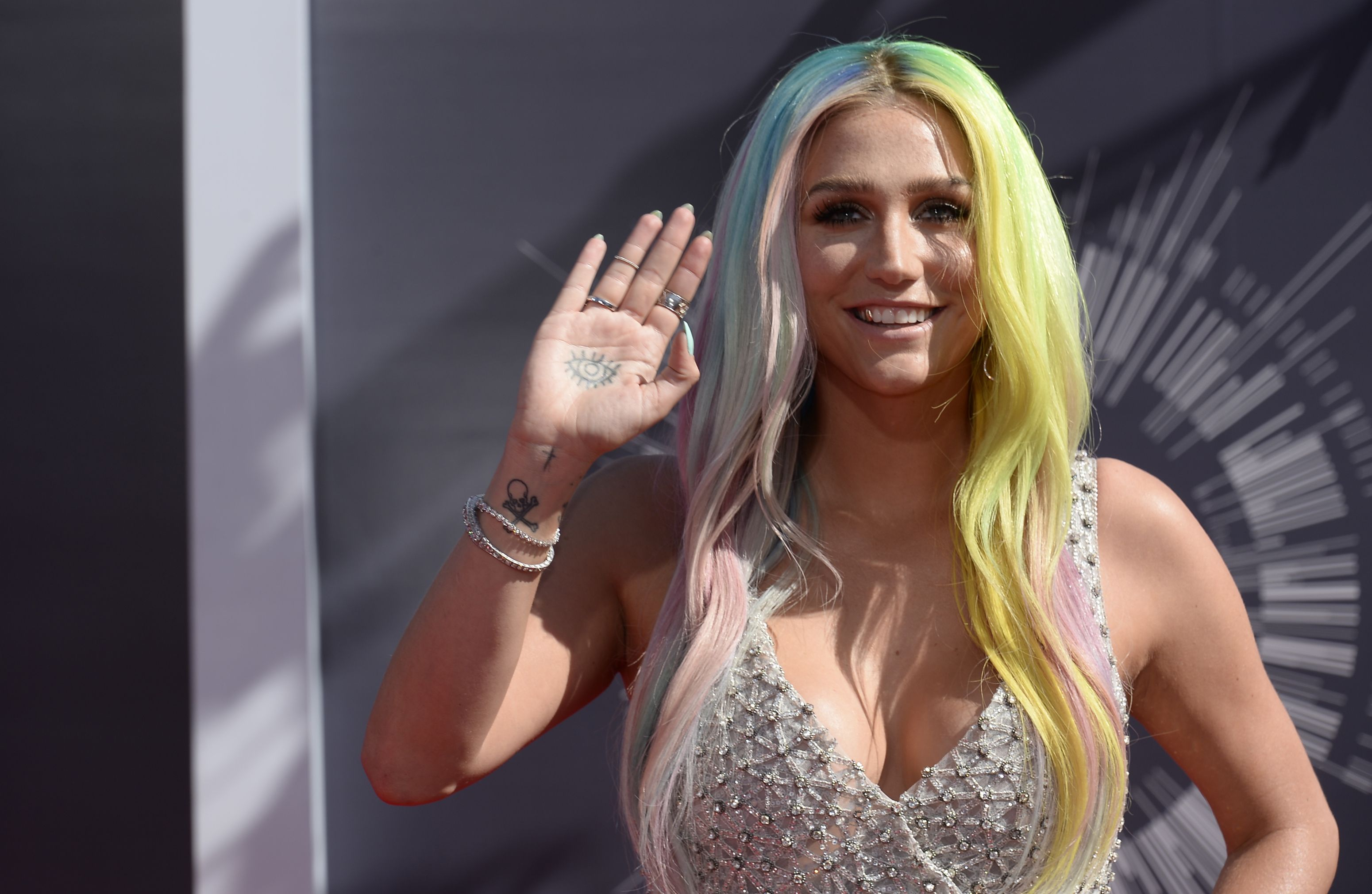 Kesha agradece apoio de fãs e outros artistas