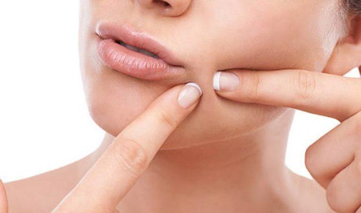 acne e espinhas