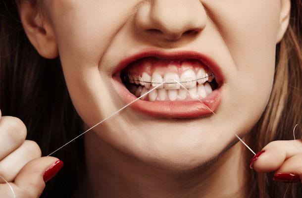Sorriso com aparelho e fio dental