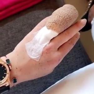 dedo da lindsay lohan cortado