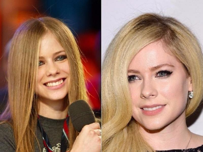 Avril Lavigne com fotos antes e depois que provam que celebridades foram substituídas