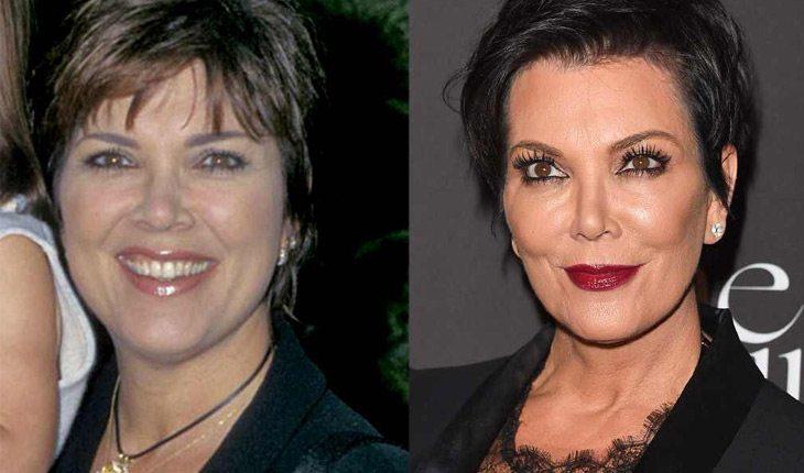 Veja o antes e depois da família Kardashian/Jenner