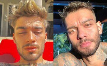 Duelo de Gatos: Zayn Malik ou Lucas Lucco?