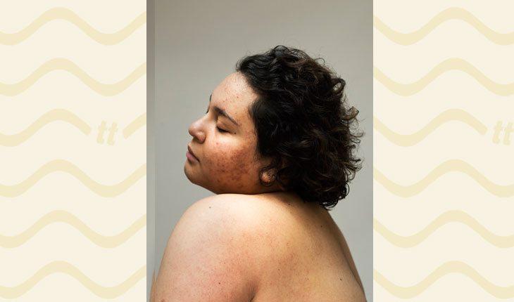 mulheres com acne